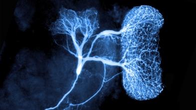 electrical-brain